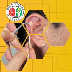 Acupuntura Auricular ou Auriculoterapia