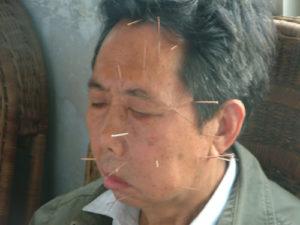 paralisiaface-300x225 Casos Clínicos: Paralisia facial - Sexo Masculino - 59 anos
